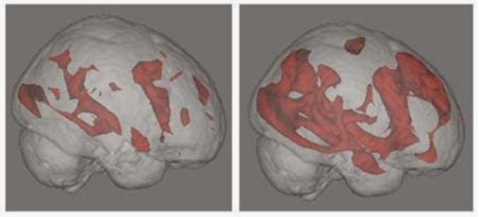 讀書的大腦(圖左)在語言、記憶和視覺區有大量活動,但它看起來比用古哥搜尋的大腦(圖右)安靜得驚人;後者在做決策、解決問題的前額葉區有大量的活動。