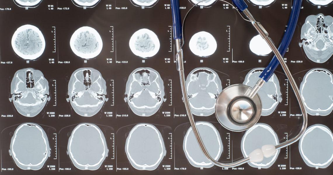 Stethoscope over medical head xray